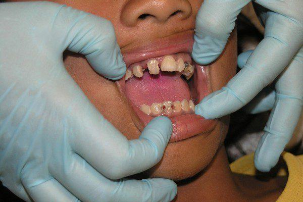 Dentition abimée