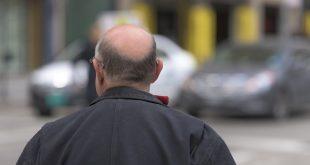 Calvitie : des gènes font trembler de nombreux hommes
